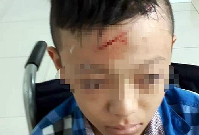 Vụ học sinh lớp 7 bị bạn đánh rách đầu: Sở Giáo dục Vĩnh Long yêu cầu báo cáo - Ảnh 1