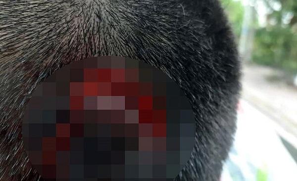 Vụ học sinh lớp 7 bị bạn đánh rách đầu: Sở Giáo dục Vĩnh Long yêu cầu báo cáo - Ảnh 2