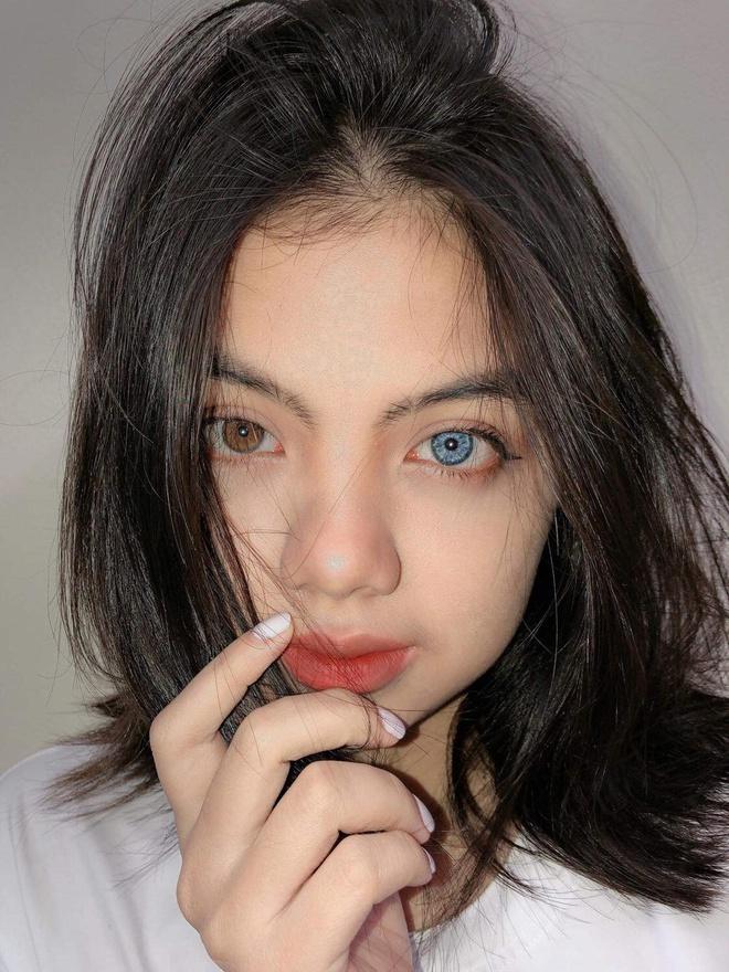 Nữ sinh Hà Nội sở hữu đôi mắt 2 màu đẹp lạ, 14 tuổi mới bắt đầu học nói và viết - Ảnh 2