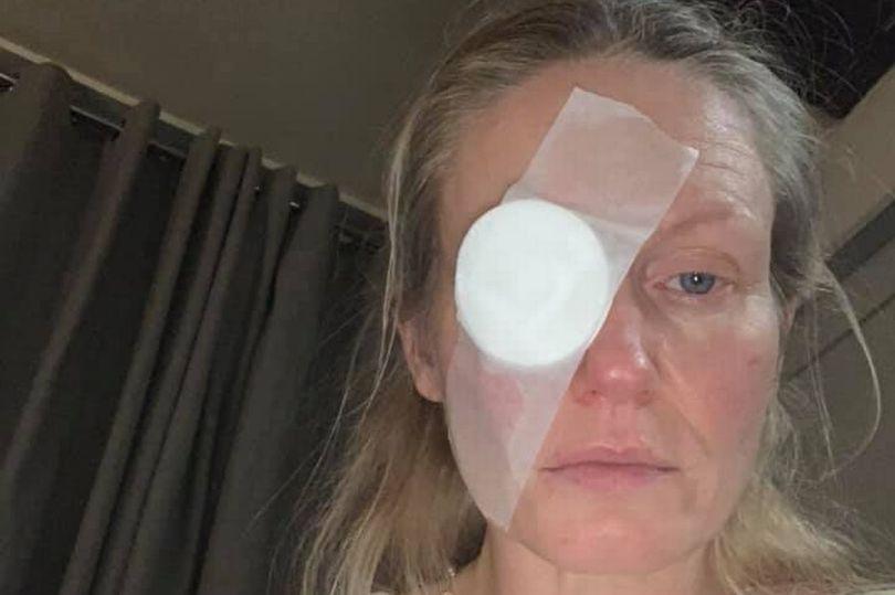 Tin tức đời sống ngày 28/12: Xé hộp quà Noel, người phụ nữ 44 tuổi suýt bị mù mắt - Ảnh 1