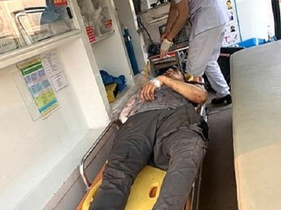 Tin tai nạn giao thông mới nhất ngày 31/3/2020: Người đàn ông bị tàu hỏa cán lìa tay - Ảnh 1