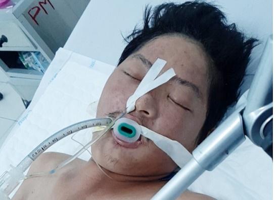 Tích cực tìm kiếm nhân thân người đàn ông chết não tại Phú Quốc - Ảnh 1