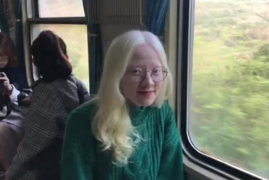 Vẻ đẹp lạ của nữ sinh bạch tạng hóa nàng thơ khi lần đầu làm mẫu ảnh - Ảnh 5