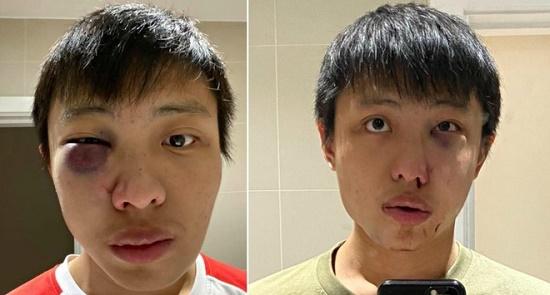 Thủ phạm hành hung du học sinh người Singapore vì kỳ thị đã nhận tội - Ảnh 1