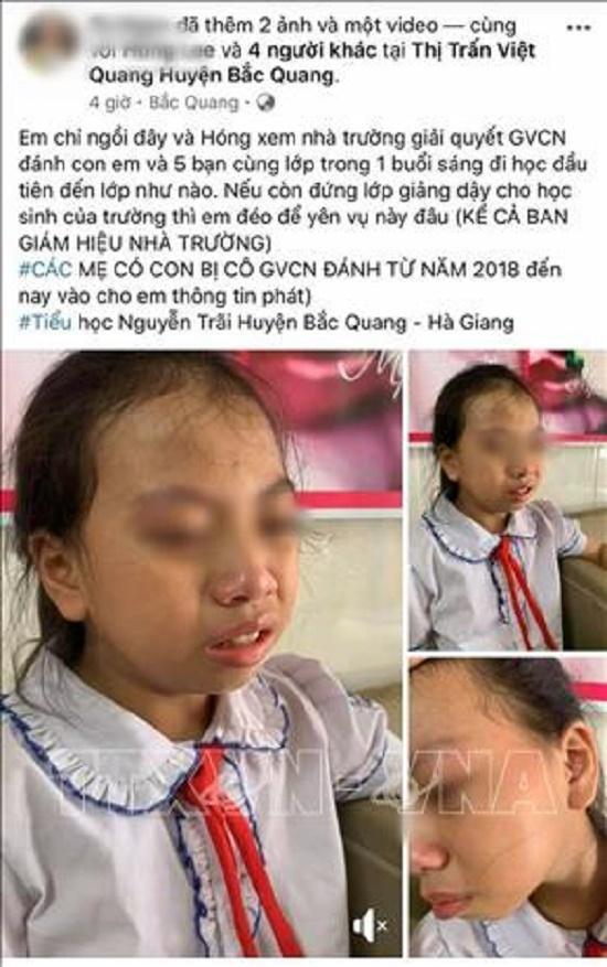 Vụ cô giáo tát học sinh lớp 4 tại Hà Giang: Phạt 7,7 triệu đồng, đình chỉ giảng dạy 3 tháng - Ảnh 1