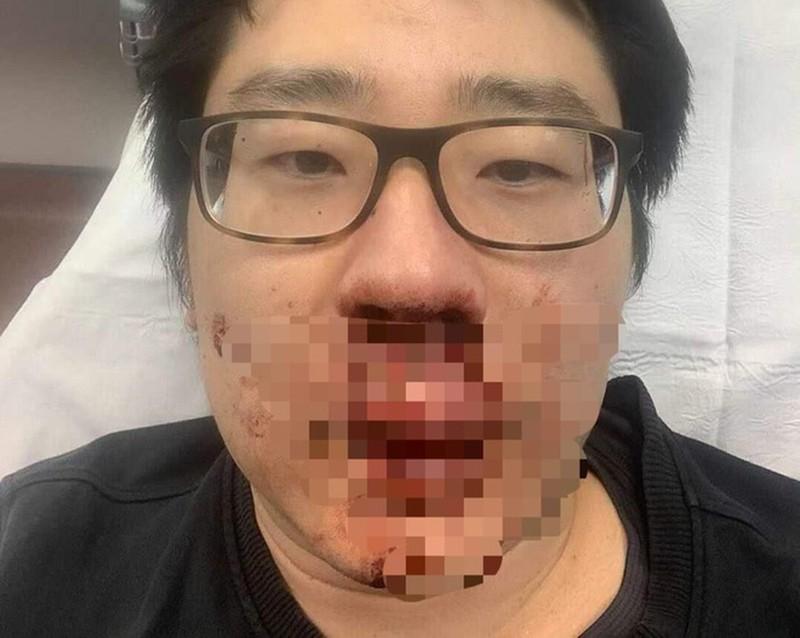 Nam giảng viên Trung Quốc bị tấn công giữa ban ngày ở Anh, lý do khiến nhiều người phải lo ngại - Ảnh 1