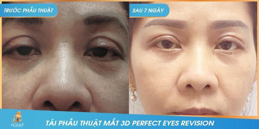 """Công nghệ tái phẫu thuật mắt """"3D Perfect Eyes Revision""""  - Ảnh 2"""