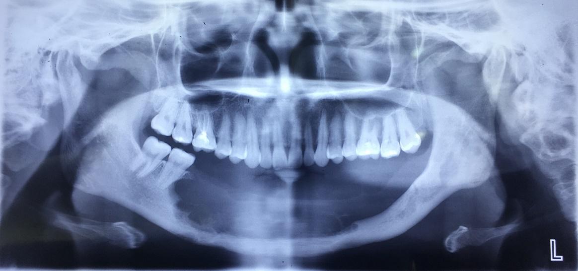 Phục hồi thẩm mỹ và chức năng cho bệnh nhân bị khuyết hổng xương hàm dưới - Ảnh 1
