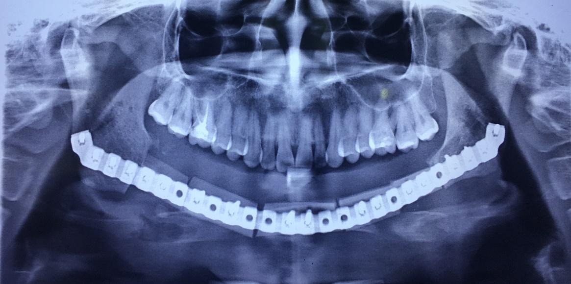 Phục hồi thẩm mỹ và chức năng cho bệnh nhân bị khuyết hổng xương hàm dưới - Ảnh 3