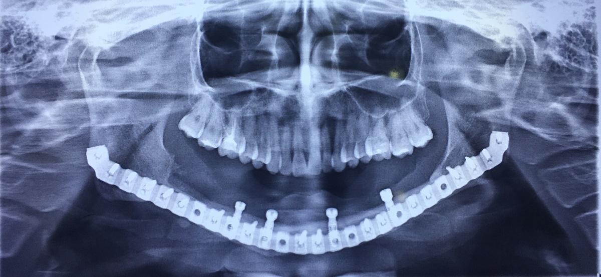 Phục hồi thẩm mỹ và chức năng cho bệnh nhân bị khuyết hổng xương hàm dưới - Ảnh 4