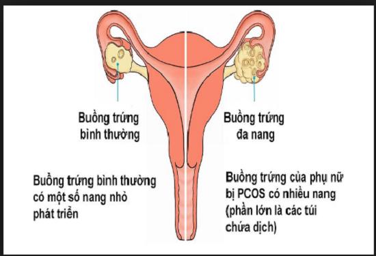 Đi tìm lời giải đáp cho buồng trứng đa nang có chữa được không?  - Ảnh 1