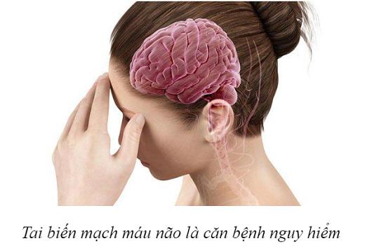 Thực phẩm bảo vệ sức khỏe Nattospes: Giải pháp hỗ trợ điều trị và phòng ngừa tai biến mạch máu não - Ảnh 1