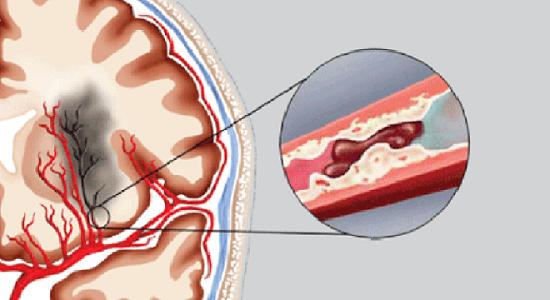 Thực phẩm bảo vệ sức khỏe Nattospes – Giải pháp cho người bị đột quỵ não  - Ảnh 1