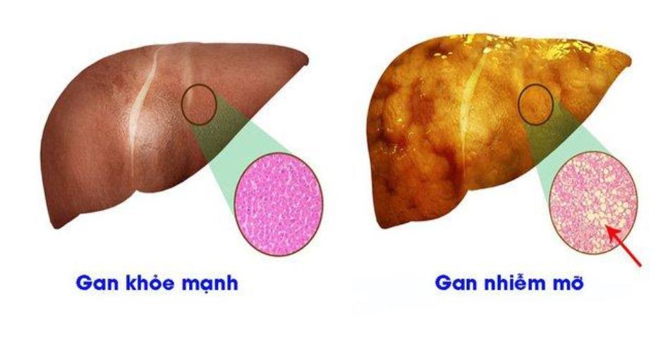 Máu nhiễm mỡ nguy hiểm ra sao? Sử dụng Lipidcleanz giúp phòng ngừa biến chứng bệnh mỡ máu như thế nào?  - Ảnh 1