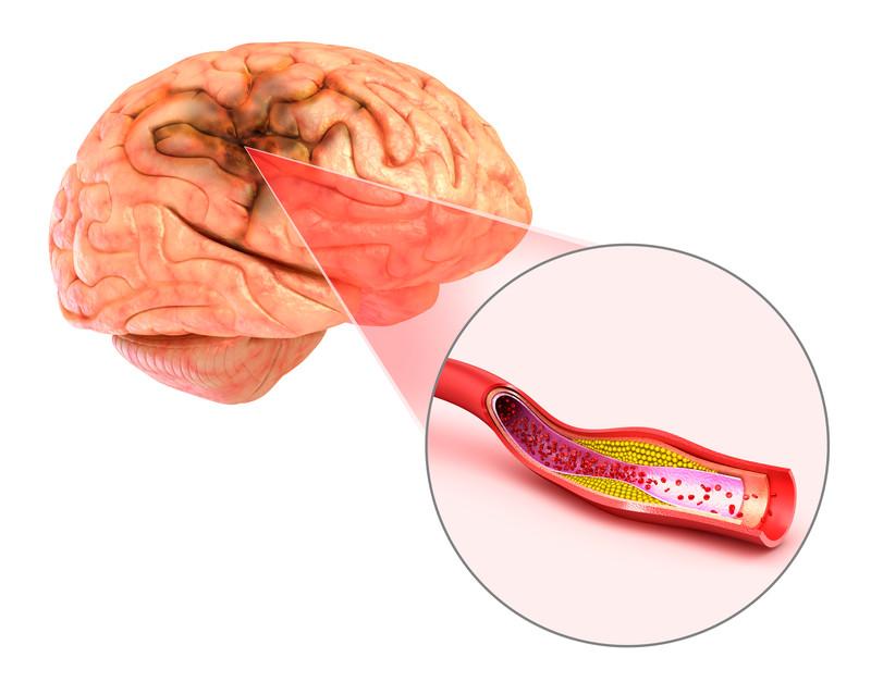 Đột quỵ não và vai trò của chụp cộng hưởng từ (MRI) trong tầm soát đột quỵ  - Ảnh 1