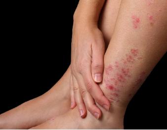 Bật mí nguyên nhân và cách điều trị bệnh vảy nến ở chân - Ảnh 1