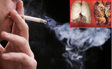 """Tumolung - Giải pháp """"vàng"""" cho người bị ung thư phổi  - Ảnh 1"""