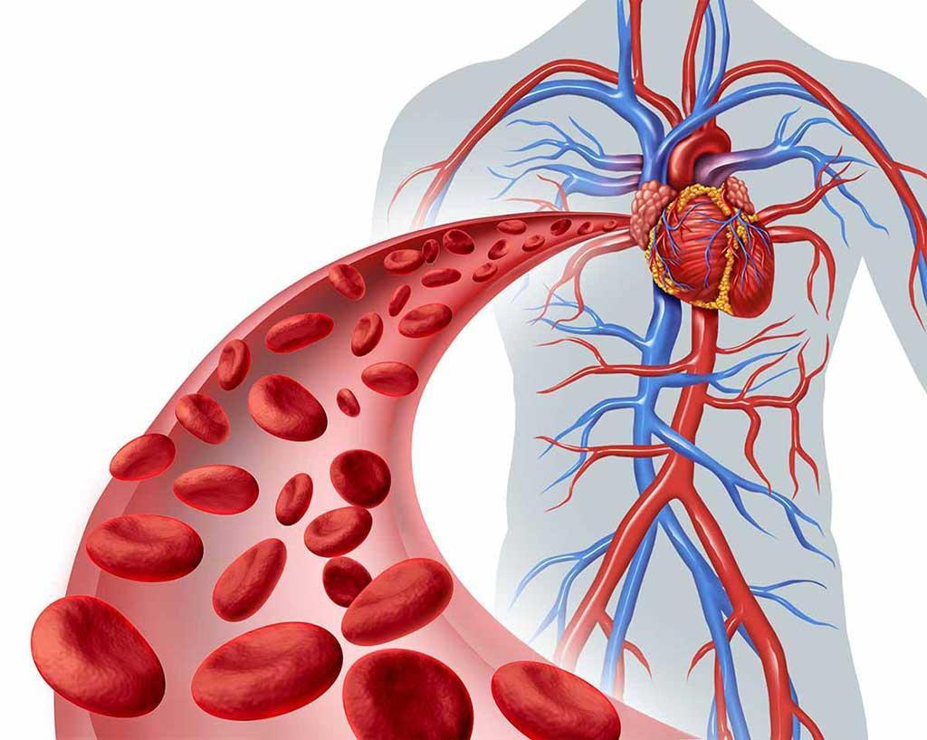 Triệu chứng rối loạn mỡ máu: bạn sẽ mắc phải nếu không thật sự hiểu về nó  - Ảnh 1