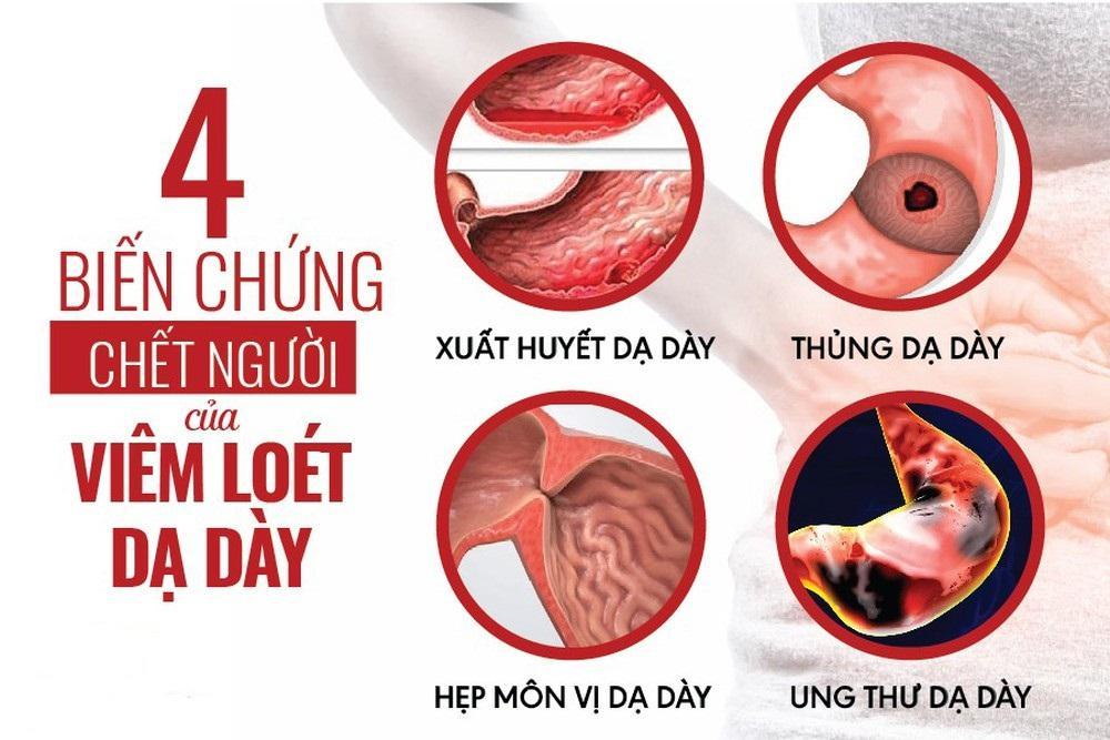 Khang Vị An hỗ trợ giảm trào ngược dạ dày an toàn, hiệu quả đến bất ngờ - Ảnh 3