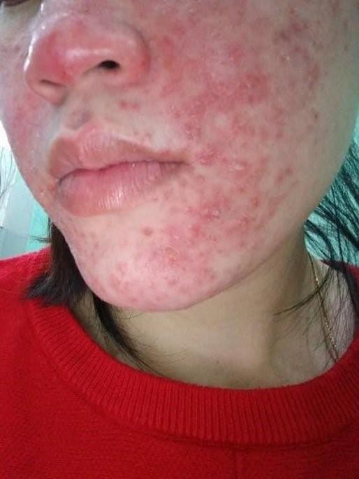 """Kem thần"" ViSkin – Hồi sinh da nhiễm Corticoid - Ảnh 1"