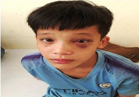 Thanh Hóa: Nam sinh 13 tuổi bị 3 mũi tên xuyên vào mắt khi bắt cá - Ảnh 1
