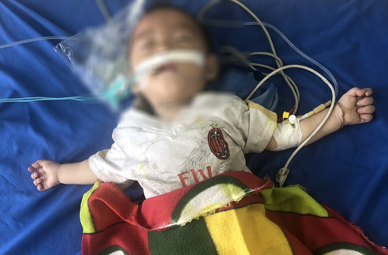 Lào Cai: Bé trai 12 tháng tuổi nguy kịch vì ngộ độc thuốc phiện do bà nội tin lời thầy lang - Ảnh 1
