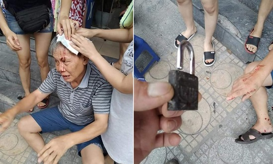 Vụ cụ ông bị ổ khóa rơi trúng đầu ở Hà Nội: Văn hóa chung cư bao giờ mới được cải thiện - Ảnh 1