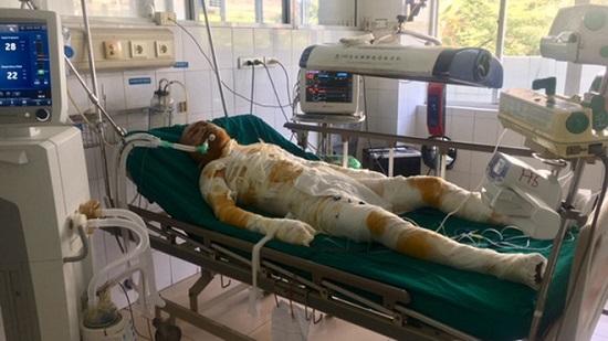 Vụ phóng hỏa đốt nhà người tình ở Sơn La: Thêm một nạn nhân tử vong - Ảnh 1