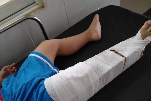 Tin tức thời sự mới nóng nhất hôm nay 7/11/2020: Nguyên nhân cô giáo mầm non làm gãy chân trẻ 3 tuổi - Ảnh 1