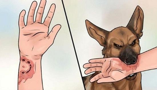Gia Lai: Đang đi tập thể dục, hàng chục người bị chó có biểu hiện bệnh dại rượt cắn - Ảnh 1