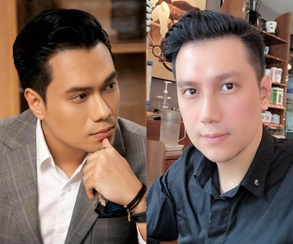 Việt Anh bị chê kém sắc, mặt cứng đơ sau gần 2 tháng phẫu thuật thẩm mỹ - Ảnh 3