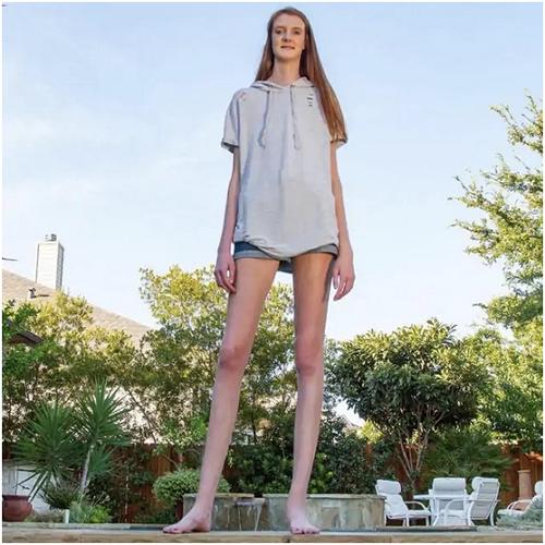 Chiêm ngưỡng đôi chân dài 1,35m phá kỷ lục thế giới của cô gái 17 tuổi - Ảnh 3