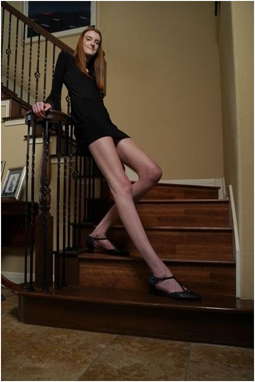 Chiêm ngưỡng đôi chân dài 1,35m phá kỷ lục thế giới của cô gái 17 tuổi - Ảnh 1