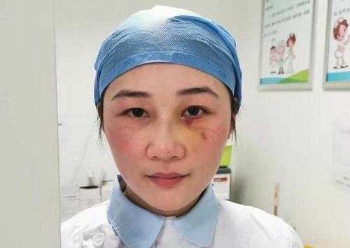Ngã gãy sống mũi vì làm việc kiệt sức, nữ y tá Vũ Hán vẫn quyết tâm ở lại tuyến đầu tiếp tục chống dịch - Ảnh 1