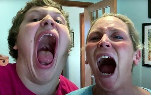 Cậu bé 16 tuổi ở Mỹ phá kỷ lục Guinness với chiếc miệng rộng nhất thế giới - Ảnh 1