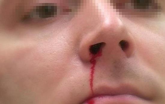 Căn bệnh ung thu vòm họng: Chảy máu cam và những dấu hiệu đặc biệt bị nhiều người xem thường - Ảnh 1