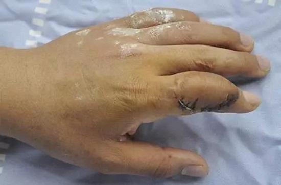 Người phụ nữ mới 29 tuổi đã bị gout, tưởng là lạ nhưng lại thường xảy ra với 4 trường hợp này - Ảnh 1