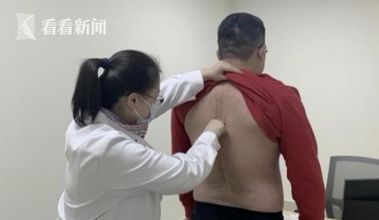 Người đàn ông 32 tuổi bị vẹo cột sống vì thích vắt chéo chân - Ảnh 2