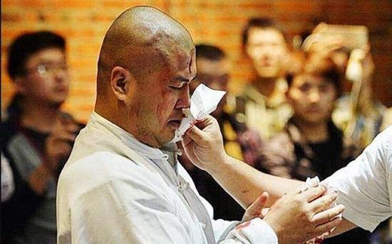Võ sư Thái Cực tai tiếng Trung Quốc tố bị 6 HLV thể hình đánh nhập viện - Ảnh 1