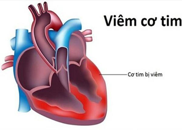 Bác sĩ Dược Sài Gòn hướng dẫn một số xét nghiệm chuẩn đoán viêm cơ tim - Ảnh 1