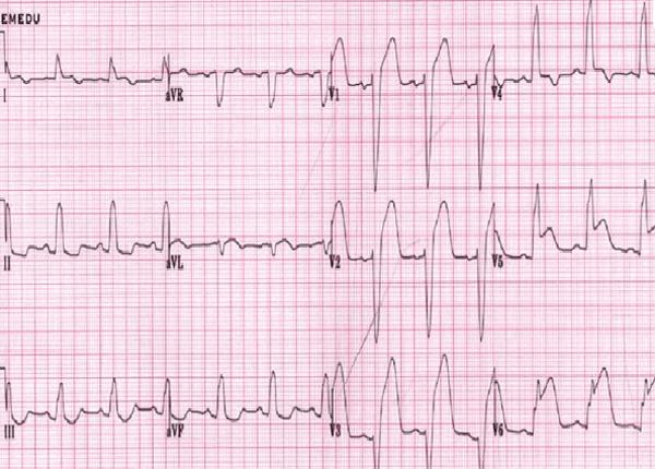 Bác sĩ Dược Sài Gòn nói về vai trò của điện tâm đồ trong nhồi máu cơ tim - Ảnh 1