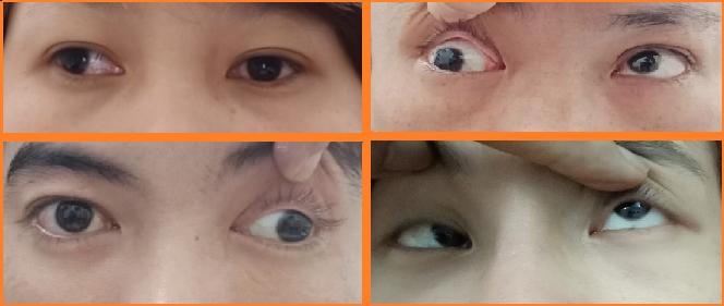 Phương pháp chữa mắt lác (mắt lé) bằng đông y - Ảnh 1
