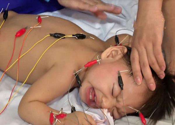 Bác sĩ Dược Sài Gòn hướng dẫn điều trị bại não bằng vật lý trị liệu - Ảnh 1