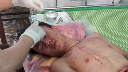 Hà Nội: Cần xử lý nghiêm nhóm đối tượng hành hung người trong đêm - Ảnh 1