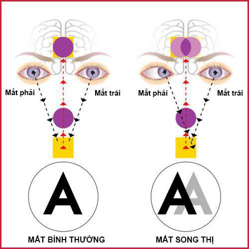 Bệnh song thị: Nguyên nhân, triệu chứng và hướng chữa trị - Ảnh 1