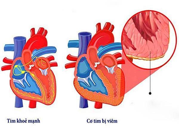 Cùng Bác sĩ Dược Sài Gòn tìm hiểu về viêm cơ tim do virus - Ảnh 1