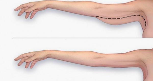 Rủi ro và những vấn đề an toàn sức khỏe liên quan đến hút mỡ bắp tay - Ảnh 1
