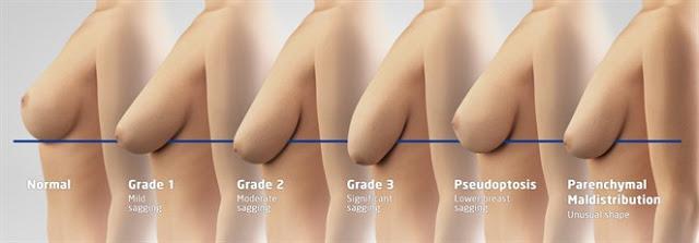 Thẩm mỹ nâng ngực chảy xệ có nguy hiểm hay không? - Ảnh 1