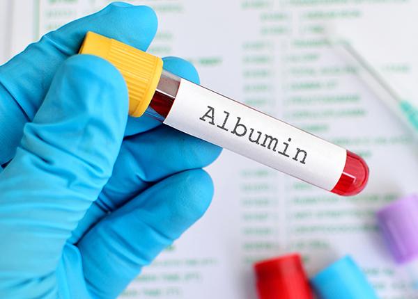 Cùng Bác sĩ Dược Sài Gòn tìm hiểu về vai trò của Albumin trong cơ thể - Ảnh 1