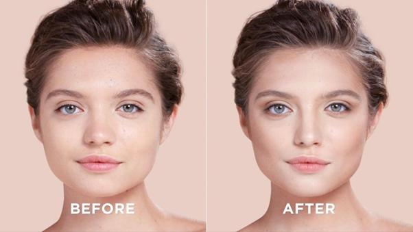 Cách giảm mỡ mặt tại Adamas - Ảnh 3